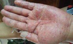女 58岁 掌跖脓包病(牛皮癣范畴)