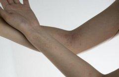 银屑病的早期症状有哪些?