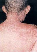 老年患上牛皮癣的症状是怎样的