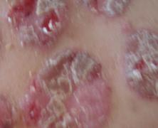 红皮病型的牛皮癣危害大吗